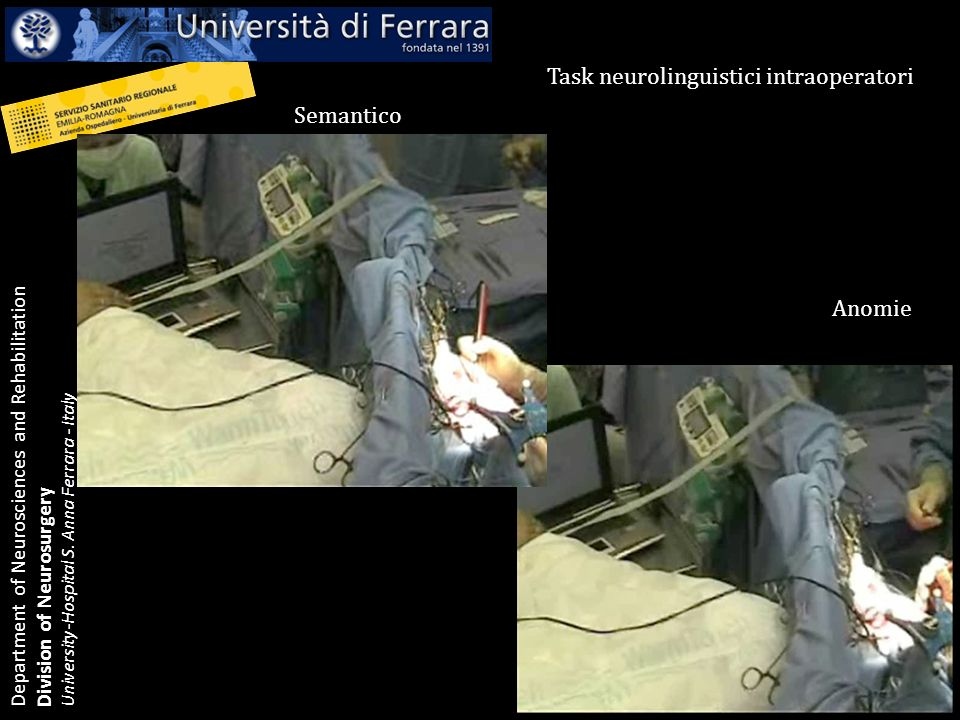 Task neurolinguistici intraoperatori