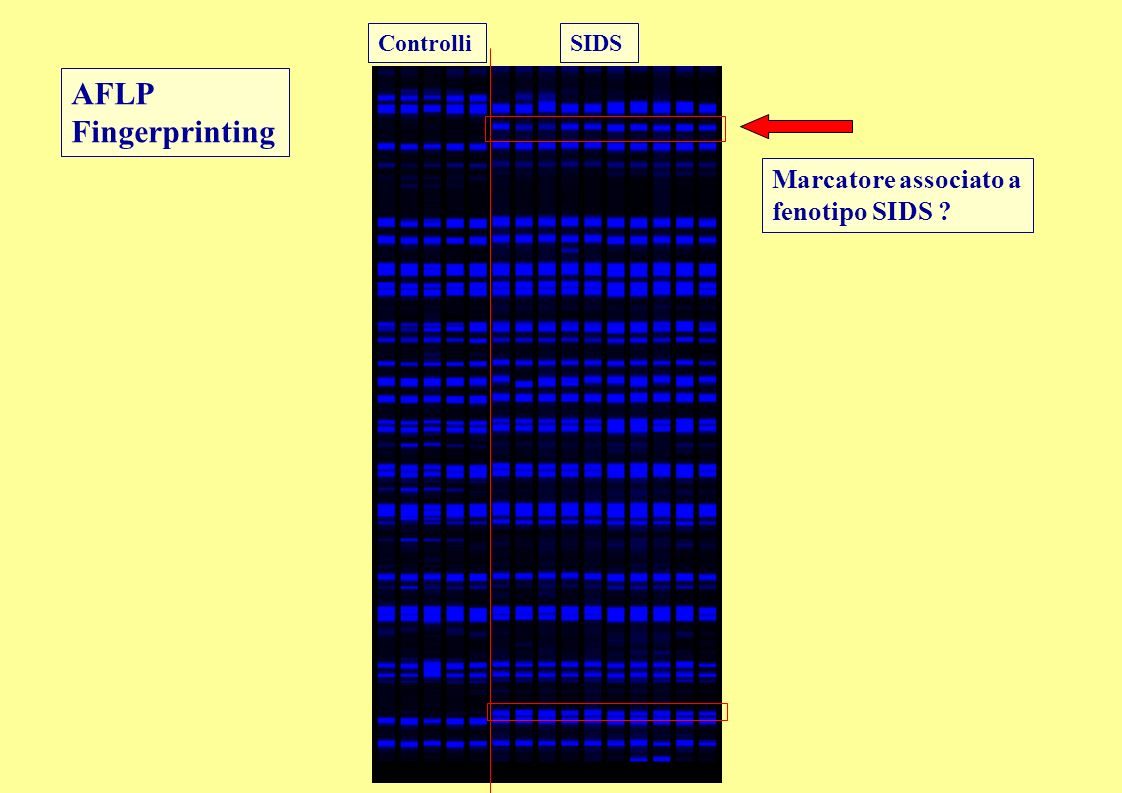 AFLP Fingerprinting Marcatore associato a fenotipo SIDS Controlli