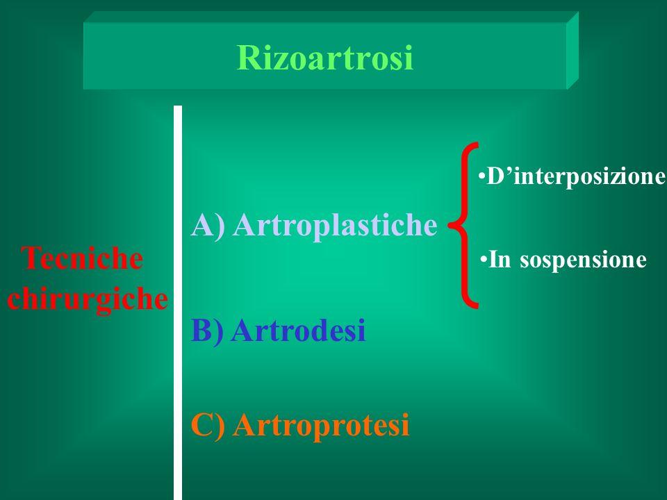 Rizoartrosi A) Artroplastiche Tecniche chirurgiche B) Artrodesi