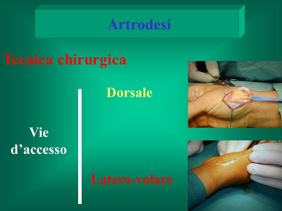 Artrodesi Tecnica chirurgica Dorsale Vie d'accesso Latero-volare