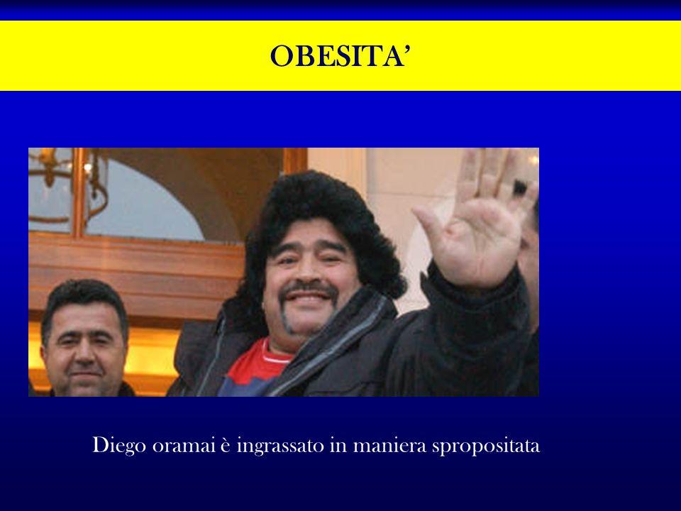 OBESITA' Diego oramai è ingrassato in maniera spropositata