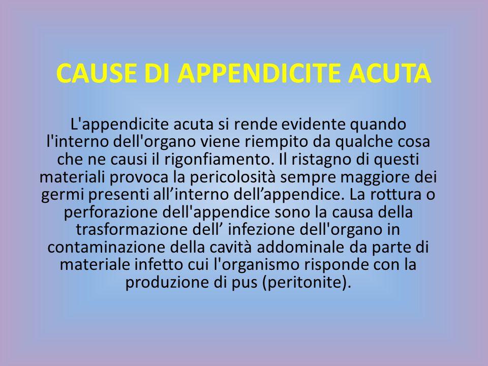 CAUSE DI APPENDICITE ACUTA