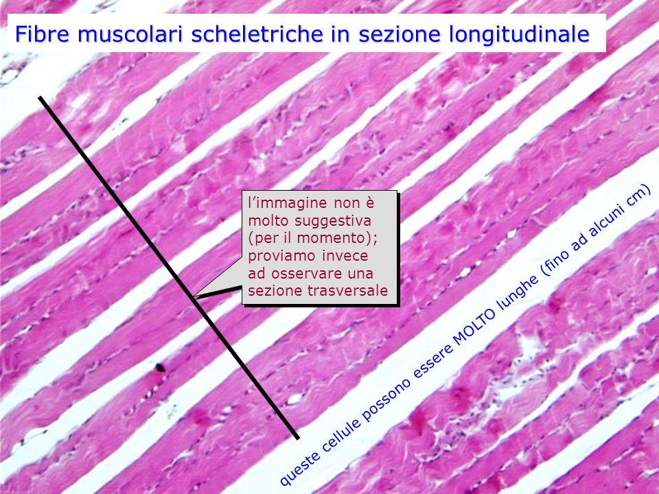 Fibre muscolari scheletriche in sezione longitudinale