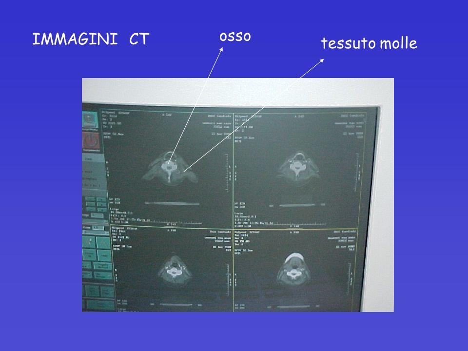 osso IMMAGINI CT tessuto molle