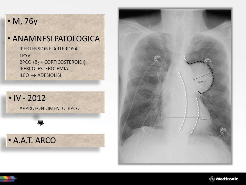 M, 76y ANAMNESI PATOLOGICA IV - 2012 A.A.T. ARCO