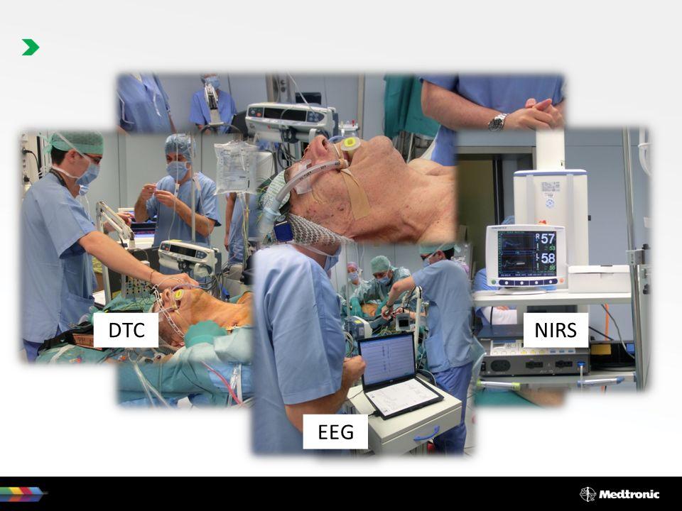DTC NIRS EEG