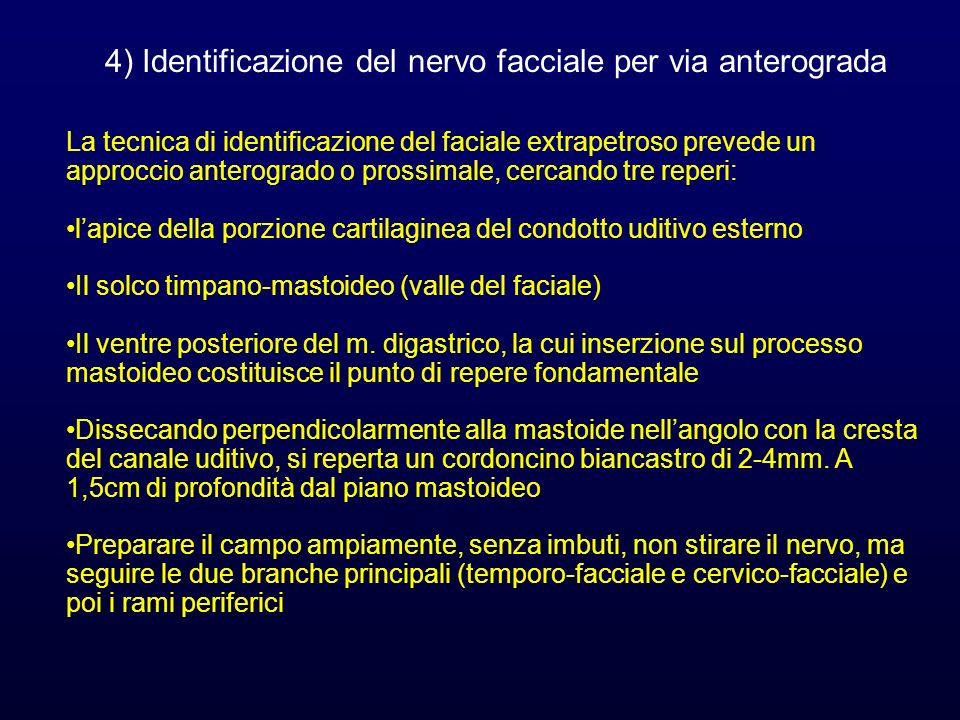 4) Identificazione del nervo facciale per via anterograda