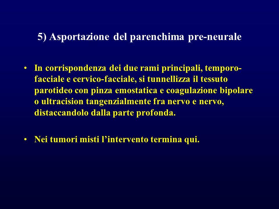 5) Asportazione del parenchima pre-neurale