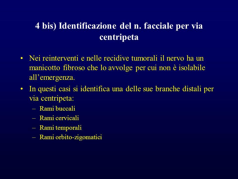4 bis) Identificazione del n. facciale per via centripeta
