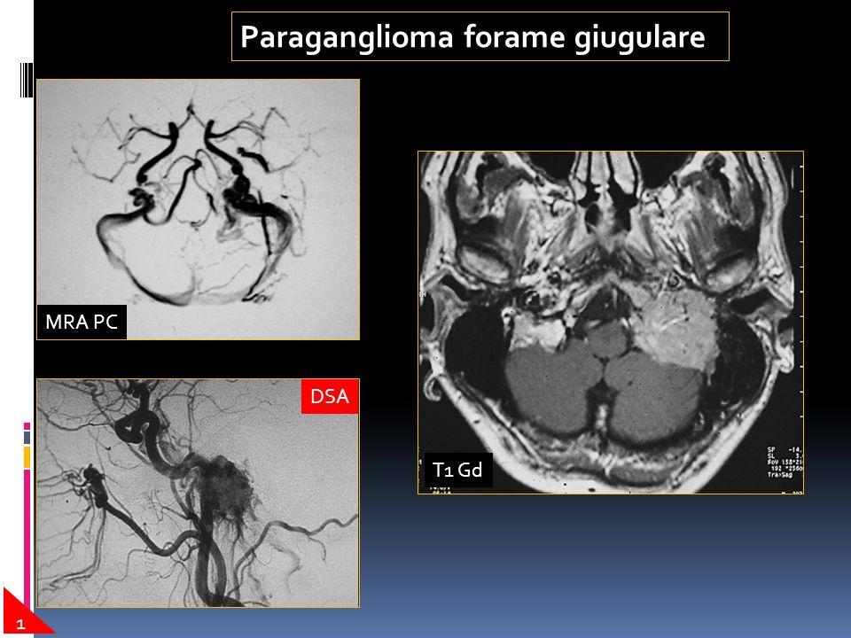 Paraganglioma forame giugulare
