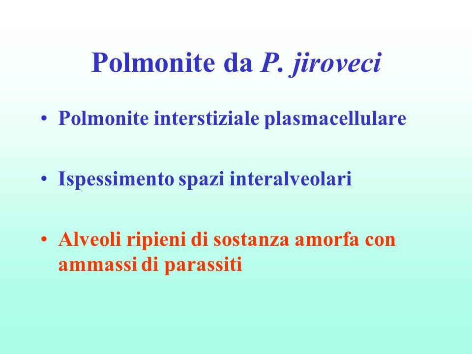 Polmonite da P. jiroveci