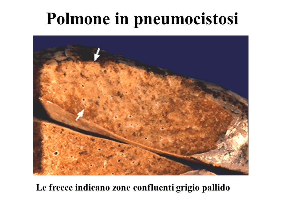 Polmone in pneumocistosi
