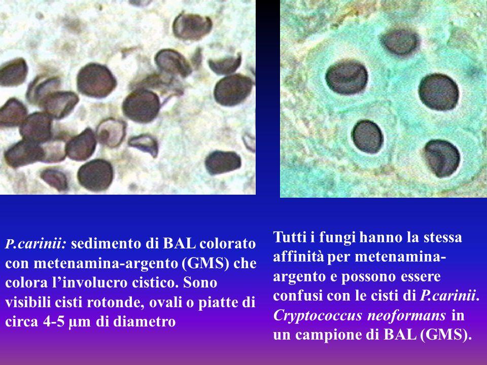 P.carinii: sedimento di BAL colorato con metenamina-argento (GMS) che colora l'involucro cistico. Sono visibili cisti rotonde, ovali o piatte di circa 4-5 µm di diametro