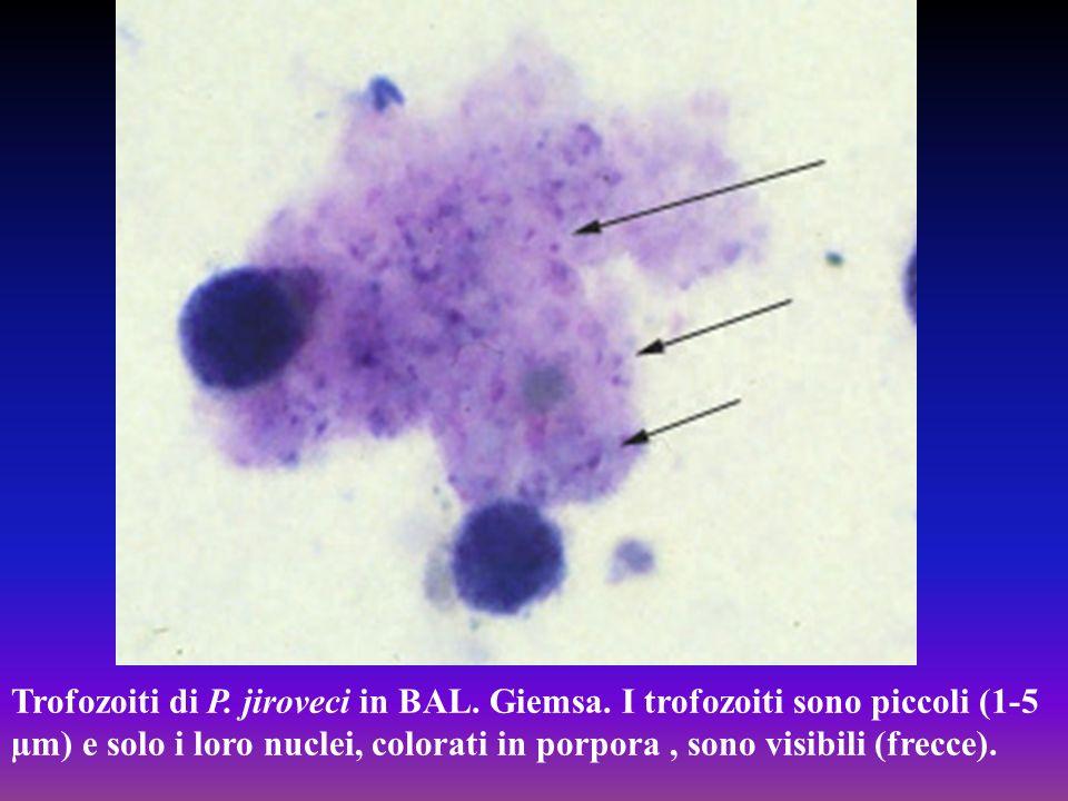 Trofozoiti di P. jiroveci in BAL. Giemsa