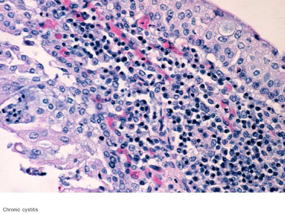 Infiammazione cronica: linfociti e plasmacellule