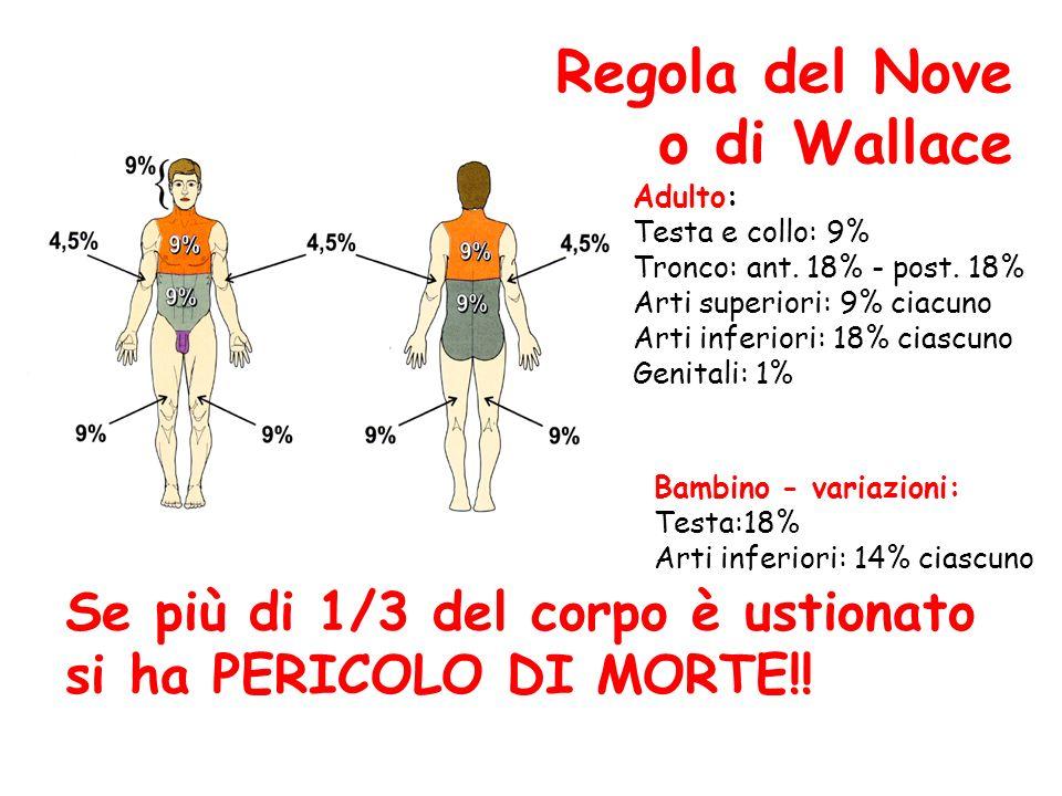 Regola del Nove o di Wallace