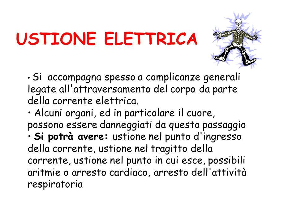 USTIONE ELETTRICA Si accompagna spesso a complicanze generali legate all attraversamento del corpo da parte della corrente elettrica.