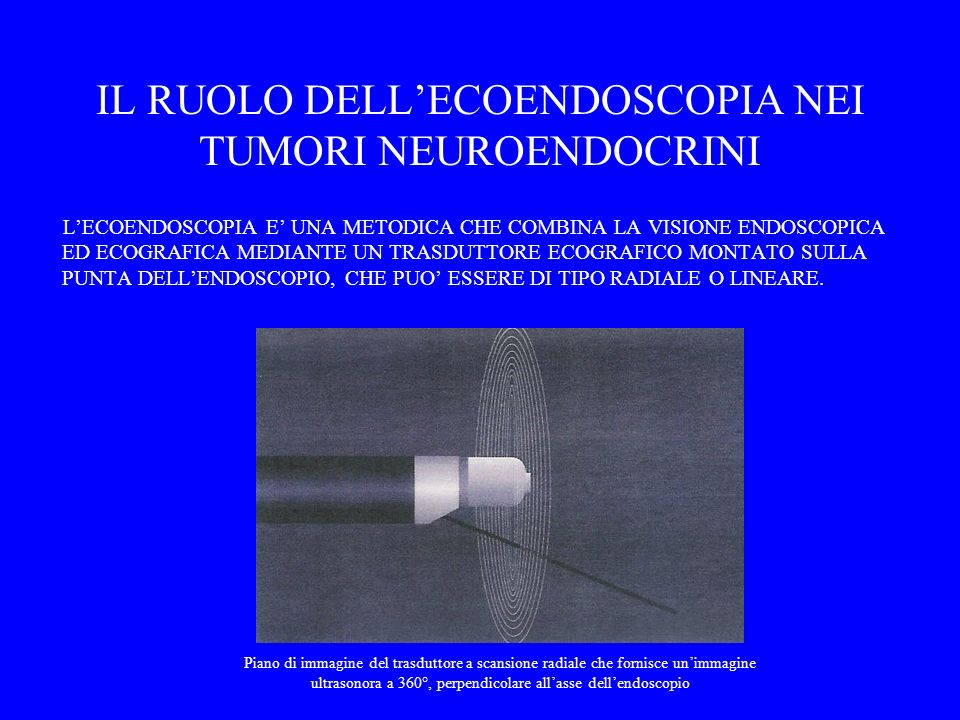 IL RUOLO DELL'ECOENDOSCOPIA NEI TUMORI NEUROENDOCRINI