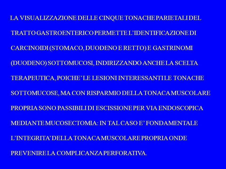 LA VISUALIZZAZIONE DELLE CINQUE TONACHE PARIETALI DEL TRATTO GASTROENTERICO PERMETTE L'IDENTIFICAZIONE DI CARCINOIDI (STOMACO, DUODENO E RETTO) E GASTRINOMI (DUODENO) SOTTOMUCOSI, INDIRIZZANDO ANCHE LA SCELTA TERAPEUTICA, POICHE' LE LESIONI INTERESSANTI LE TONACHE SOTTOMUCOSE, MA CON RISPARMIO DELLA TONACA MUSCOLARE PROPRIA SONO PASSIBILI DI ESCISSIONE PER VIA ENDOSCOPICA MEDIANTE MUCOSECTOMIA: IN TAL CASO E' FONDAMENTALE L'INTEGRITA' DELLA TONACA MUSCOLARE PROPRIA ONDE PREVENIRE LA COMPLICANZA PERFORATIVA.
