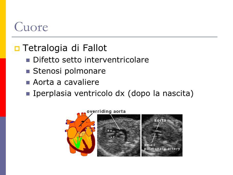 Cuore Tetralogia di Fallot Difetto setto interventricolare