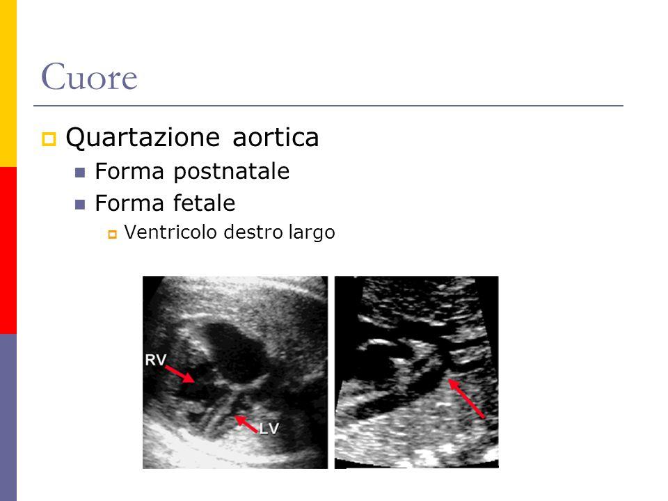 Cuore Quartazione aortica Forma postnatale Forma fetale