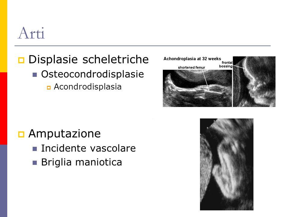 Arti Displasie scheletriche Amputazione Osteocondrodisplasie