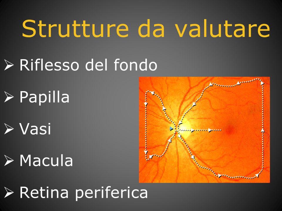 Strutture da valutare Riflesso del fondo Papilla Vasi Macula
