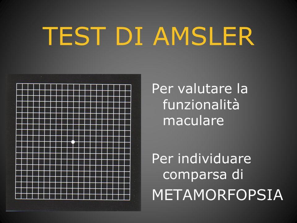 TEST DI AMSLER METAMORFOPSIA Per valutare la funzionalità maculare