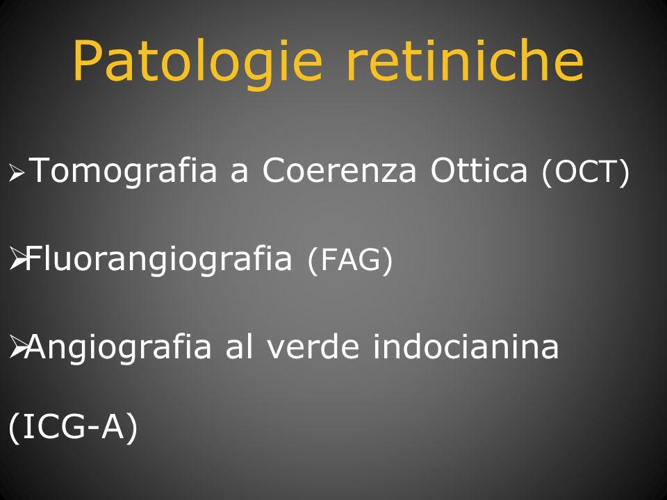 Patologie retiniche Fluorangiografia (FAG)