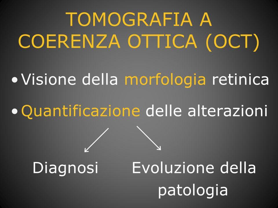 TOMOGRAFIA A COERENZA OTTICA (OCT)