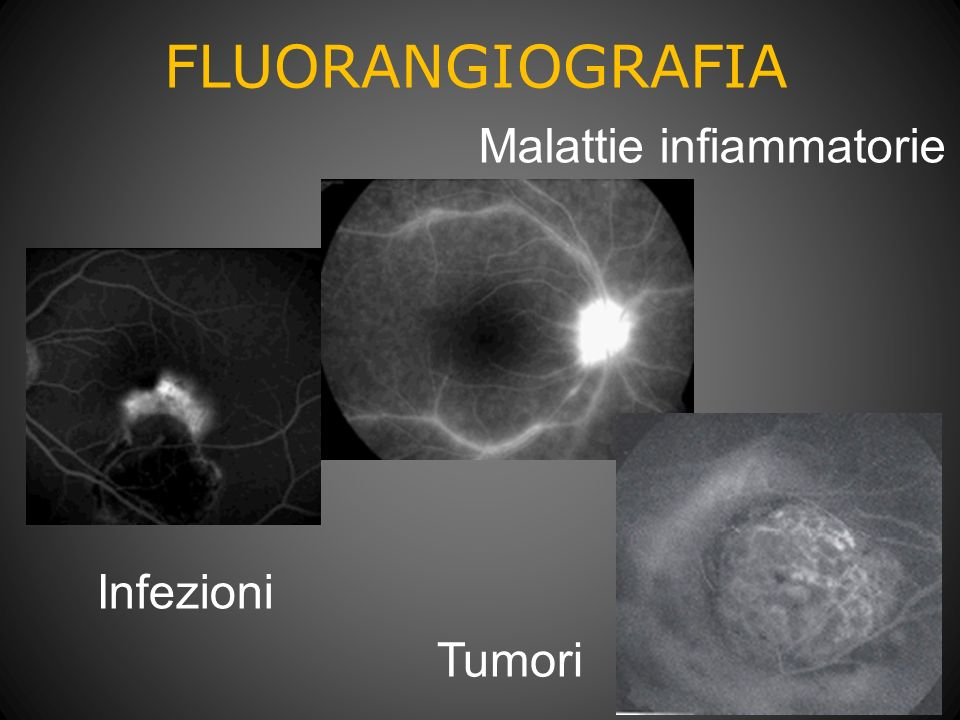 FLUORANGIOGRAFIA Malattie infiammatorie Infezioni Tumori