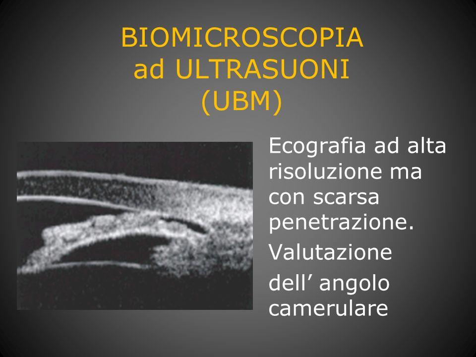 BIOMICROSCOPIA ad ULTRASUONI (UBM)