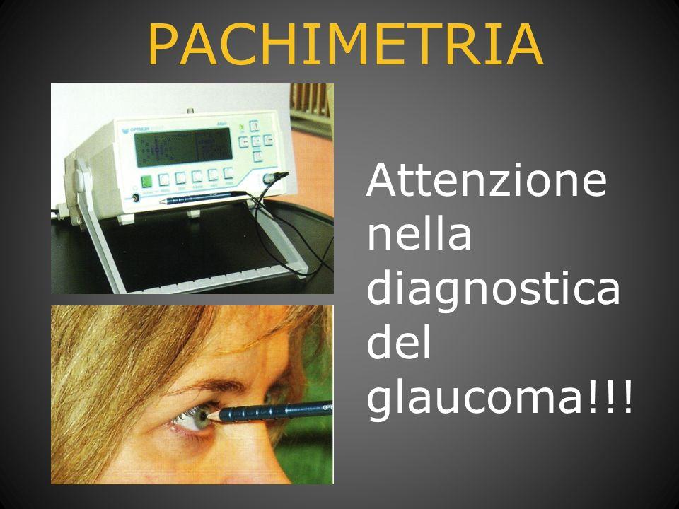 PACHIMETRIA Attenzione nella diagnostica del glaucoma!!!
