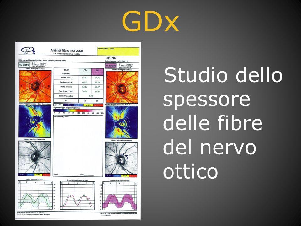 GDx Studio dello spessore delle fibre del nervo ottico