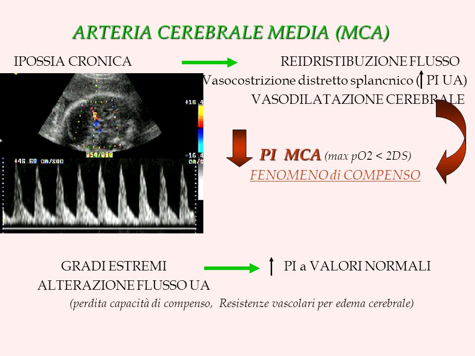ARTERIA CEREBRALE MEDIA (MCA)