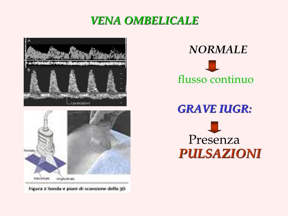 NORMALE Presenza PULSAZIONI VENA OMBELICALE flusso continuo