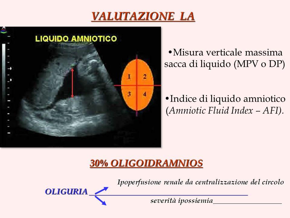 Ipoperfusione renale da centralizzazione del circolo