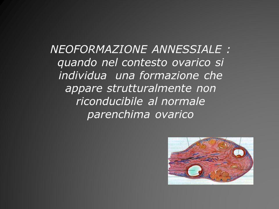 NEOFORMAZIONE ANNESSIALE : quando nel contesto ovarico si individua una formazione che appare strutturalmente non riconducibile al normale parenchima ovarico