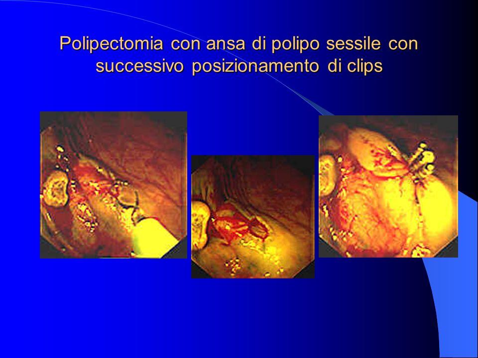 Polipectomia con ansa di polipo sessile con successivo posizionamento di clips