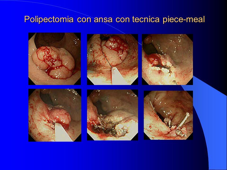 Polipectomia con ansa con tecnica piece-meal