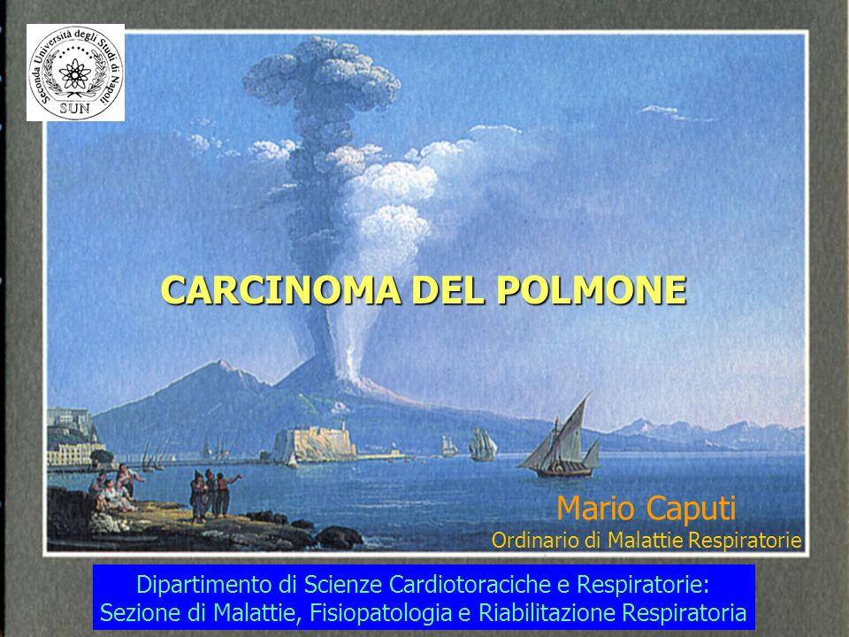 CARCINOMA DEL POLMONE Mario Caputi