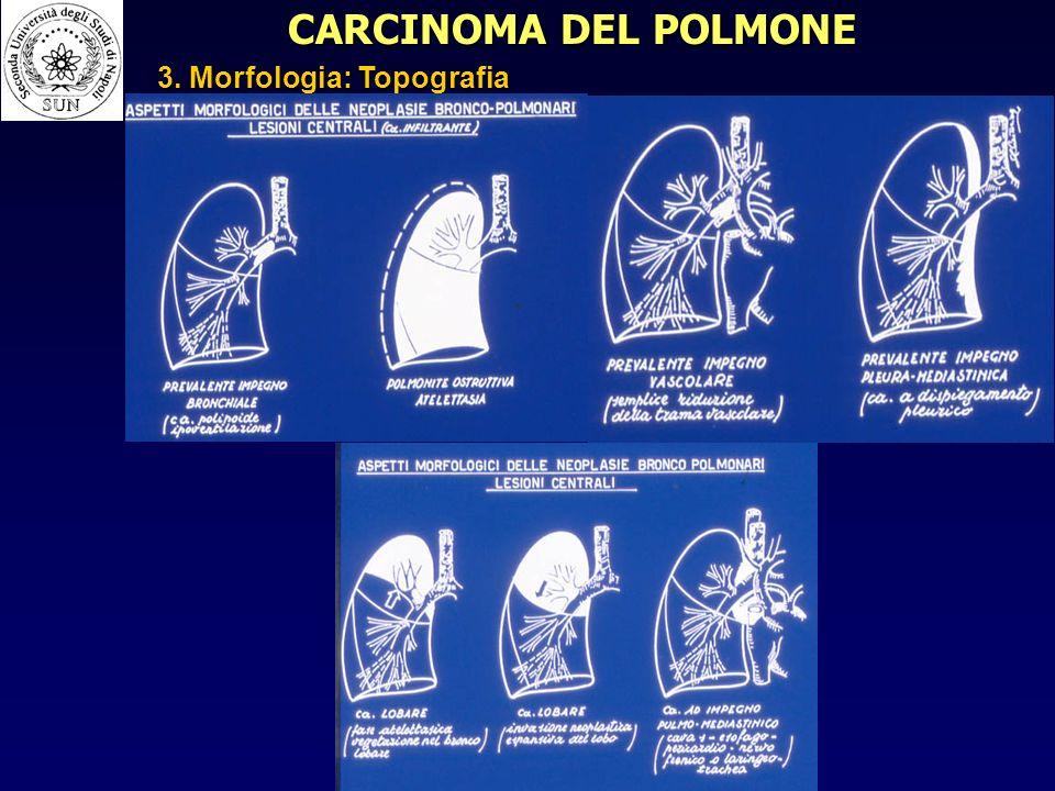 CARCINOMA DEL POLMONE 3. Morfologia: Topografia