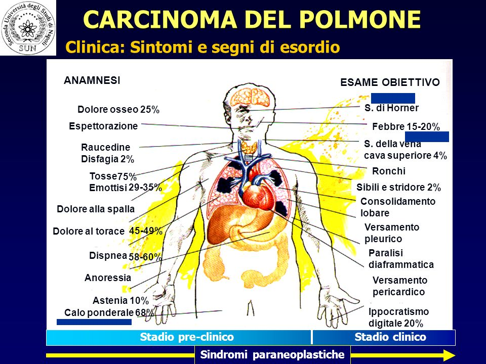 Clinica: Sintomi e segni di esordio Sindromi paraneoplastiche