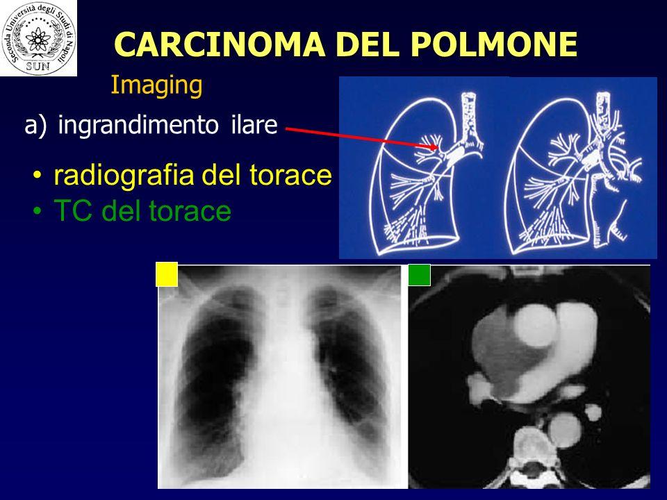 CARCINOMA DEL POLMONE radiografia del torace TC del torace Imaging