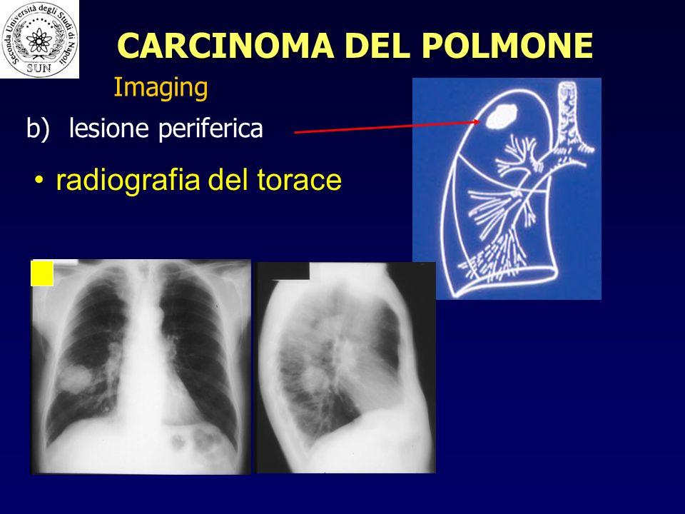 CARCINOMA DEL POLMONE radiografia del torace Imaging