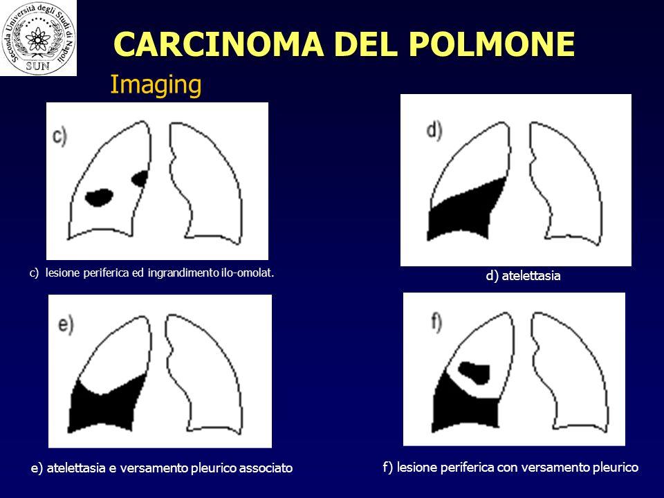 CARCINOMA DEL POLMONE Imaging d) atelettasia