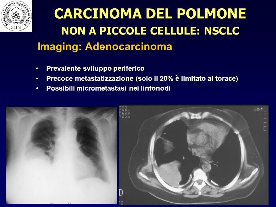 NON A PICCOLE CELLULE: NSCLC