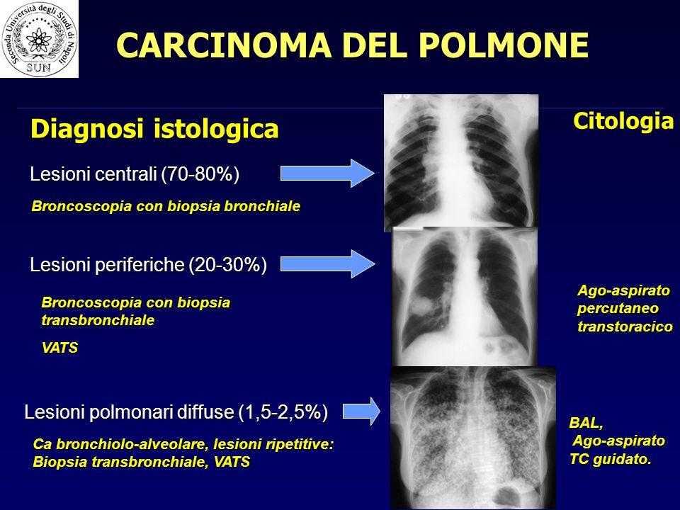CARCINOMA DEL POLMONE Diagnosi istologica Citologia