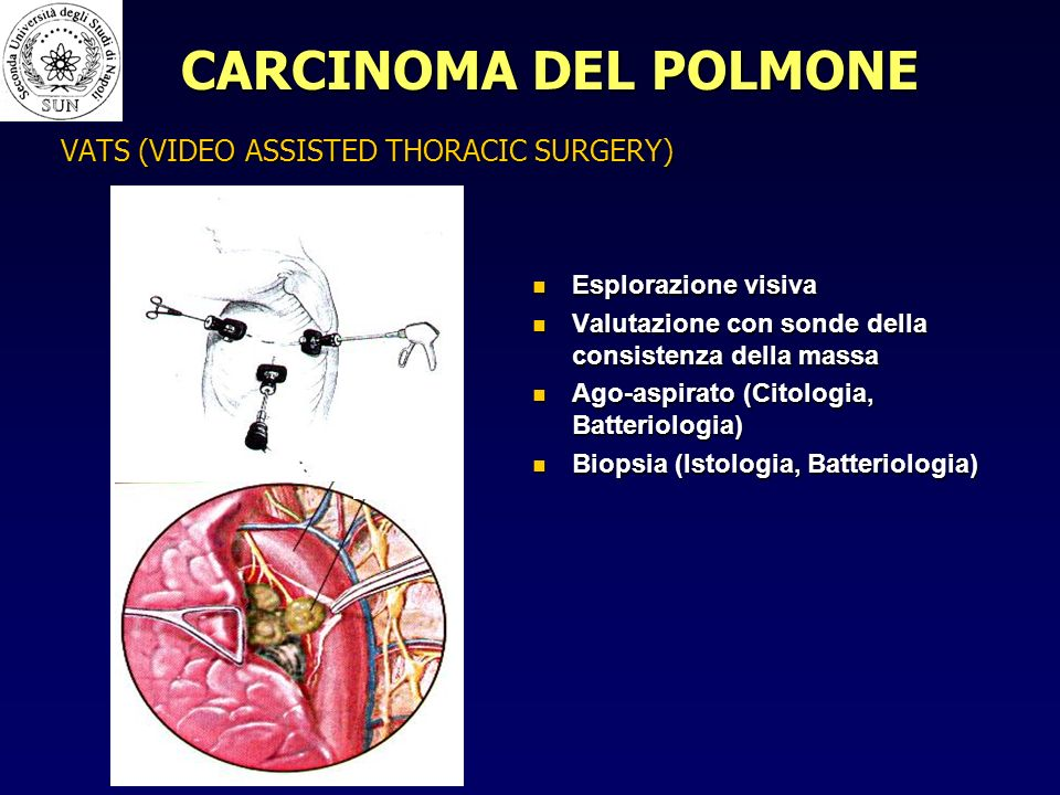 VATS (VIDEO ASSISTED THORACIC SURGERY)