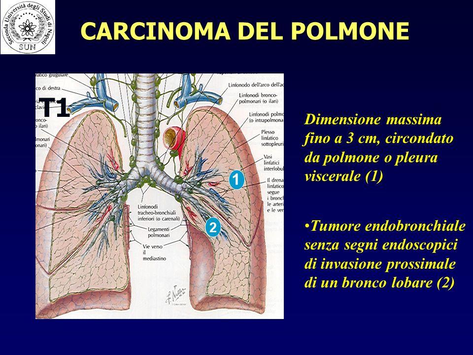 T1 CARCINOMA DEL POLMONE